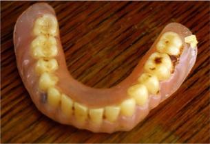 ψεύτικα δόντια που βρέθηκαν σε σωλήνα αποχέτευσης
